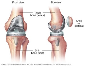 Knee Replacement Surgery Pinehurst, NC